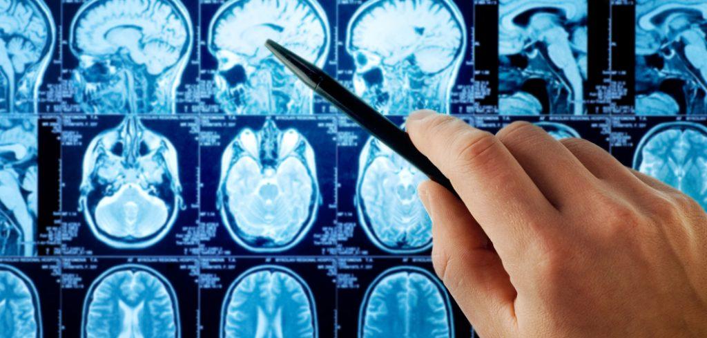 bdhealthsolution-Neuorology