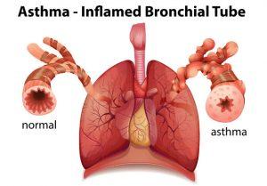 bdhealthsolution-asthma